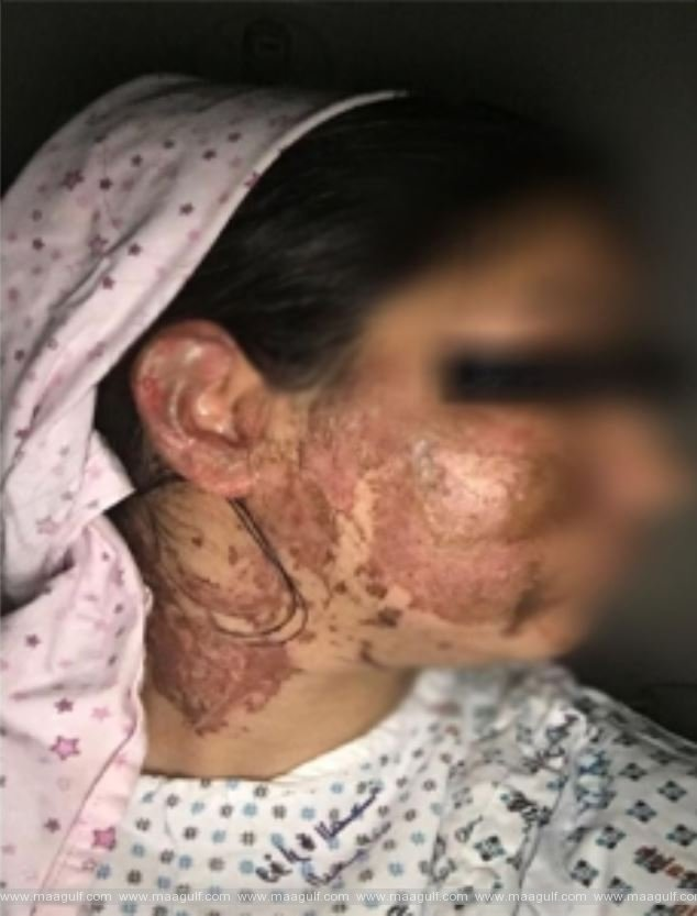 Bahraini Ex-Husband attacks former wife with acid